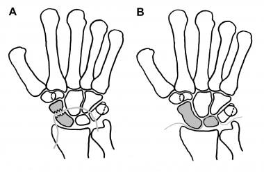 A is the greater-arc or transscaphoid perilunate d