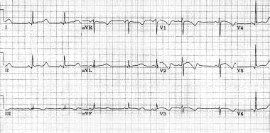 Marked prolongation of QT interval in a 15-year-ol