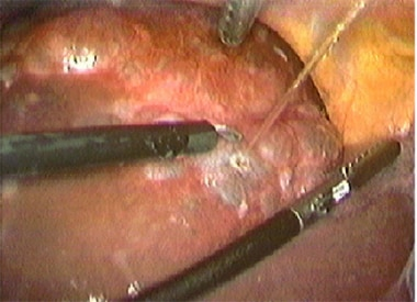 Laparoscopic view of initial hepatic cyst puncture