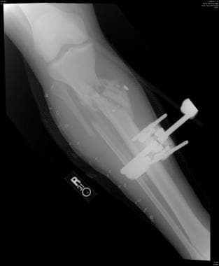 Radiograph of an open right tibial fracture in a 2