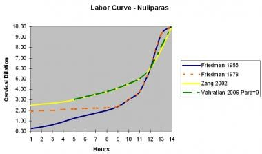 Labor curve for nulliparas.
