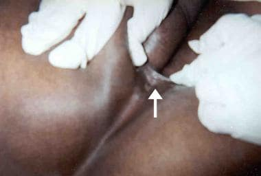 Anal fistulas and fissures. This patient reported