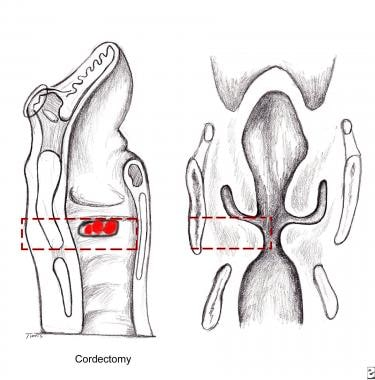 For imbrication laryngoplasty, the cordectomy is p