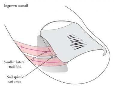 Schematic view illustrating taping of the nail. Co