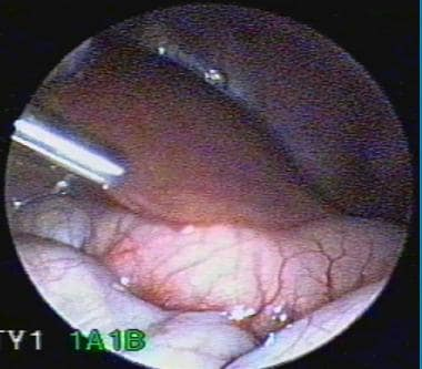 Laparoscopic pyloromyotomy.