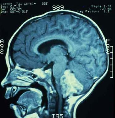 MRI showing an ependymoma of the fourth ventricle,