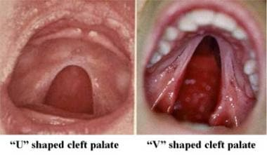 U-shaped and V-shaped cleft palates.