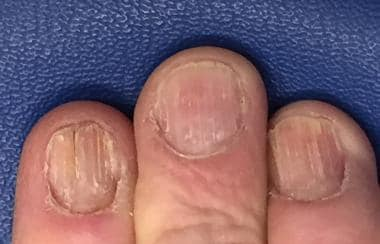Lichen planus nail involvement.