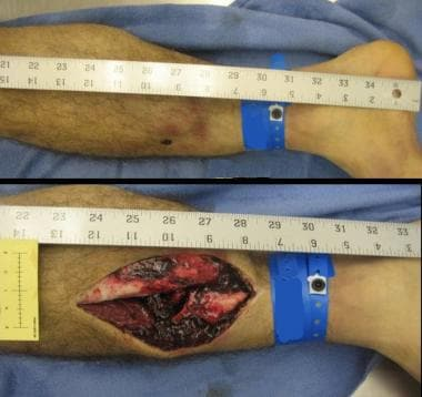 Bumper fracture. This image shows a typical tibia