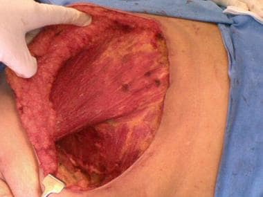 Pectoralis major and serratus anterior visible at