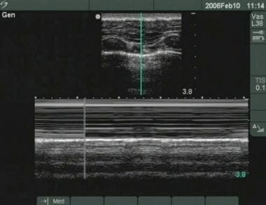M-mode ultrasonography showing seashore sign, indi