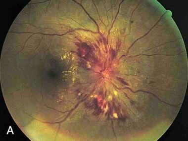 Papilledema. Note the swelling of the optic disc,
