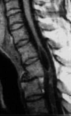 Midsagittal T1-weighted cervical MRI scan of a you