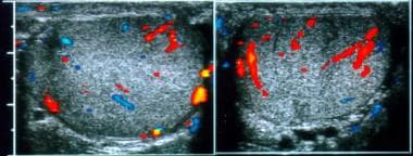 Normal testes. Transverse color Doppler images of