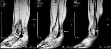 Calcaneus, fractures. Normal variants, complicatio