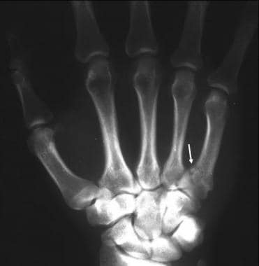 A frontal radiograph of the hand shows a fracture