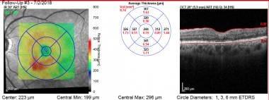 Branch Retinal Vein Occlusion (BRVO) Treatment & Management