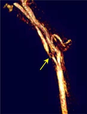 Carotid MR angiogram demonstrates very high-grade