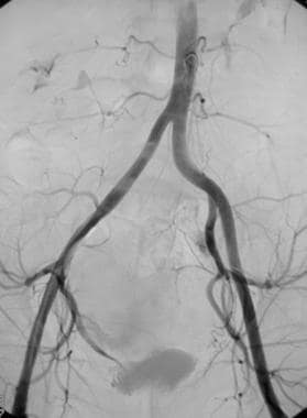 Nonselective angiogram of the pelvis after emboliz
