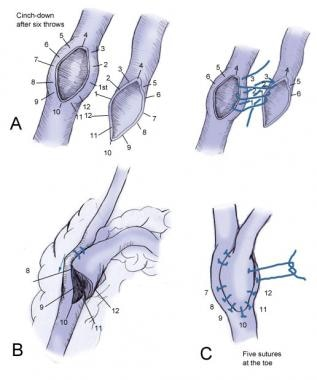 Illustration of the distal anastomotic technique.