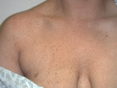 Extensive speckled lentiginous nevus.