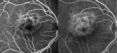 Acute retinal pigment epitheliitis: Early-phase fl