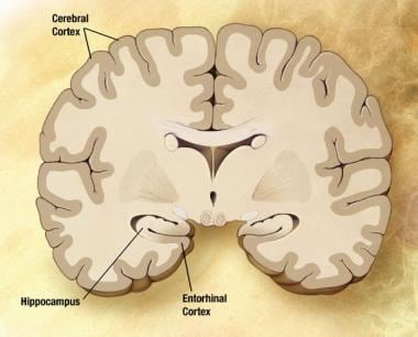 Preclinical Alzheimer disease. Image courtesy of N