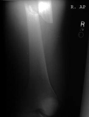 Anteroposterior radiograph of a femur fracture in