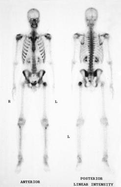 Bone scan.