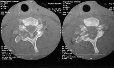 Axial CT scan of C7-T1 fracture/dislocation.