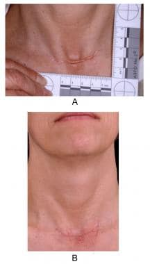 This patient's neck wound developed a hypertrophic