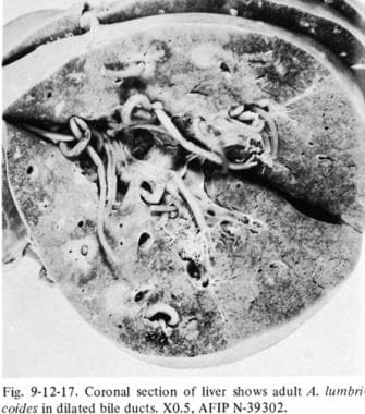 Adult Ascaris lumbricoides in biliary system.