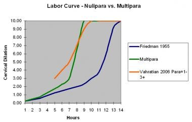 Labor curve for nulliparas versus multiparas.