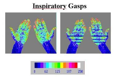 Normal laser Doppler study of the upper extremitie
