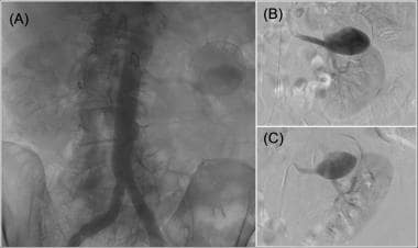 (A) Aortogram with calcified left renal artery ane