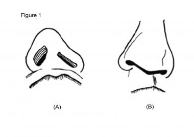 Cleft lip nasal deformity. A: Basal view. B: Front
