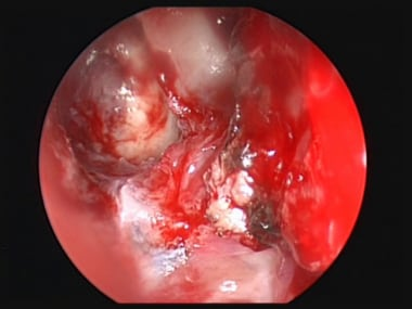 This image represents an endoscopic view with a 70