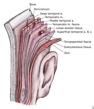 Temporoparietal fascia flap. A more accurate descr