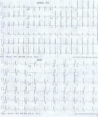 ECGs demonstrate a normal sinus rhythm and a sinus