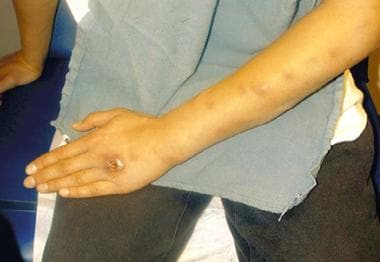 Sporotrichosis with cutaneous necrosis and lymphan