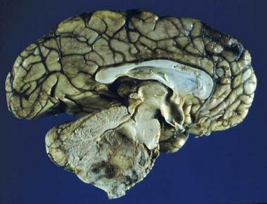 Sagittal section of an ependymoma of the fourth ve