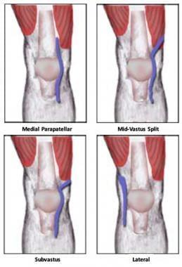 Minimally Invasive Total Knee Arthroplasty Technique: Minimally