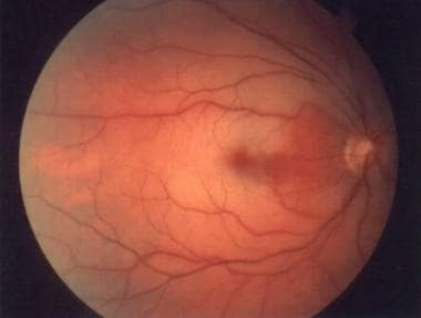Central retinal artery occlusion with cherry-red s