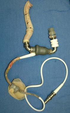 A photograph showing a ventricular assist device a