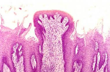Fungiform papillae. (Image courtesy of Dr Caceci.)