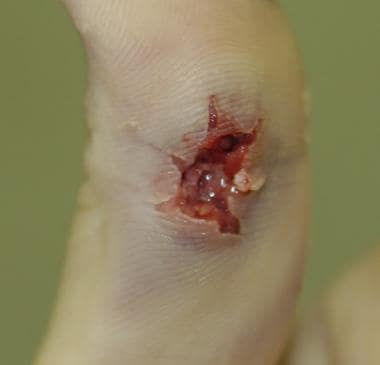 Gunshot entrance wound of the palmar surface of a