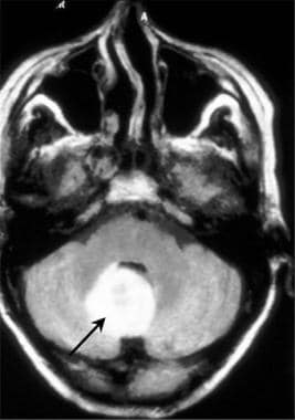 Brain abscess. Axial fluid-attenuated inversion re