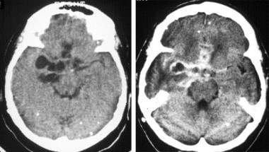 Nonenhanced (left) and enhanced (right) CT images