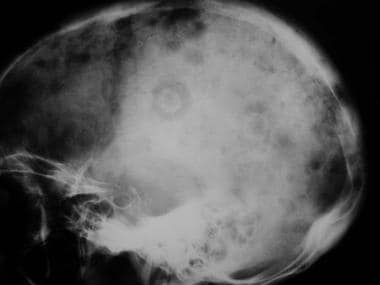 Lateral radiograph shows mixed osteolytic-scleroti