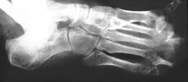 Neuropathic arthropathy (Charcot joint). Anteropos